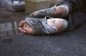 Homeless, frozen feet