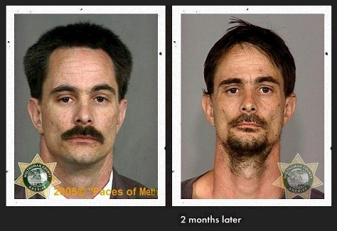 This unfortunate man's drastic transformation in just 2 months from Methamphetamine abuse.