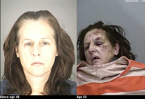 5 years of Meth Use Adora age 48 and again at age 53 on death bed.