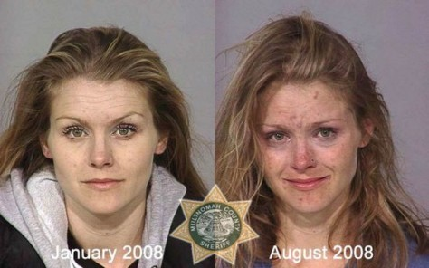 8 months in-between these 2 pictures. Notice the signs of meth use. There are very similar symptoms in all these users.