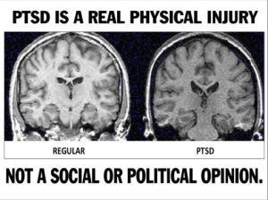 #PTSD www.darwinsrightleftwing.com